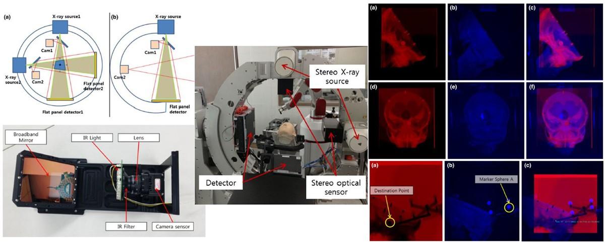 X-ray 및 광학 스테레오 기반 3D 센서 융합 시스템